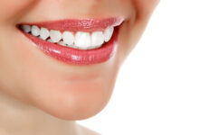 Photo of Teeth Whitening and Maintenance Solutions That Won't Break the Bank